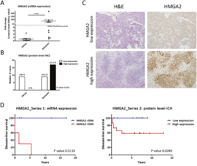 Differential HMGA2 expression distinguishes two types of blastemal WT component.