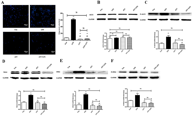 Atorvastatin (ATV) inhibits LPS-induced macrophage migration and protein expression of AKT2, P-AKT2, NBA1, SPK1, and P-SPK1 in macrophages.