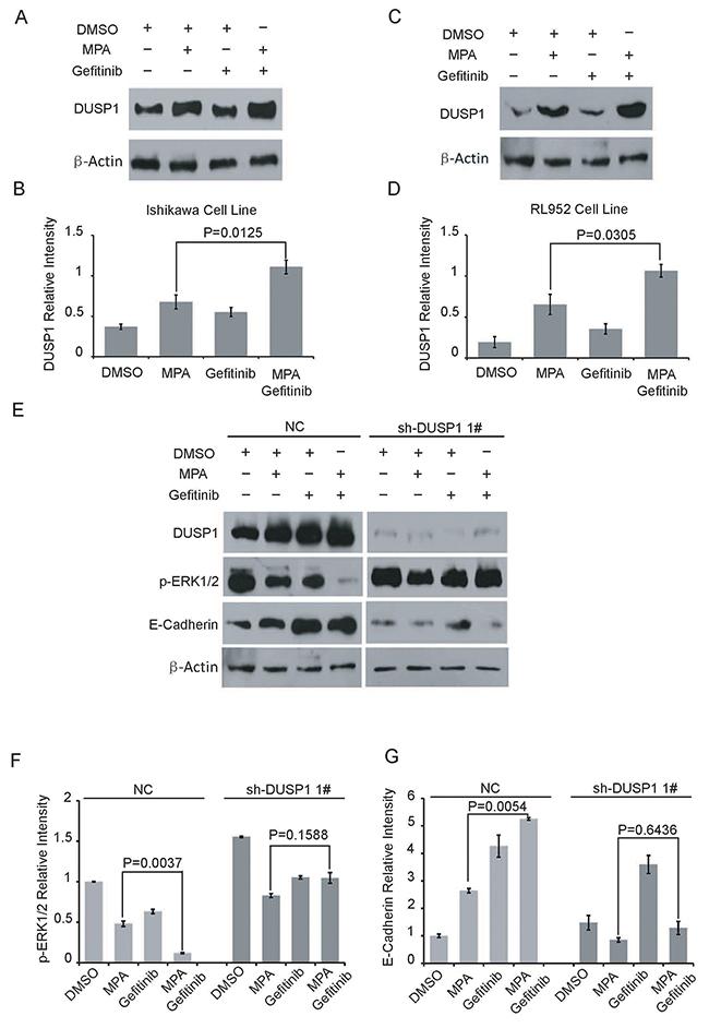 Gefitinib enhances MPA-mediated suppression of EC cells via DUSP1.