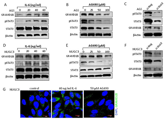JAK/STAT signaling regulates GRAMD1B expression in gastric cancer cell lines.