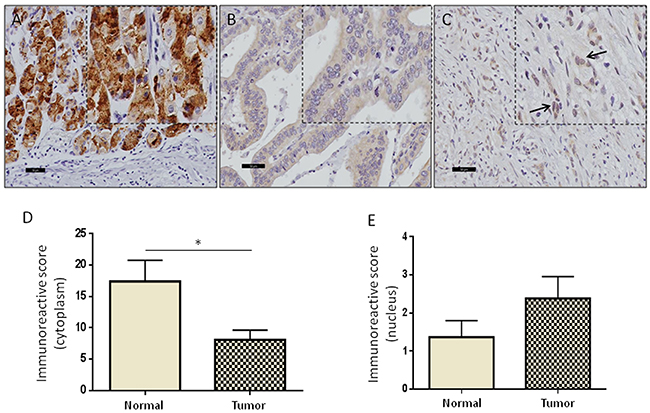 High levels of nuclear GRAMD1B are associated with aggressive diffuse-type of gastric cancer.