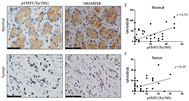 GRAMD1B expression pattern shows a positive correlation with pSTAT3 (Tyr705) in gastric tissue.