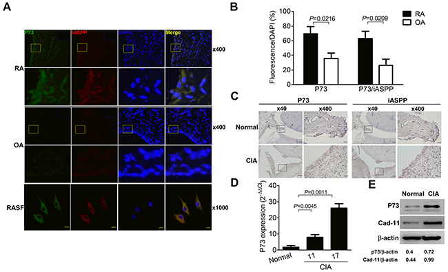 Increased p73 levels with co-localized iASPP expression in the rheumatoid joint.