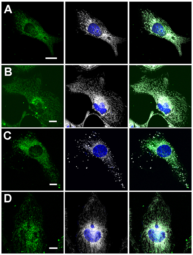 Co-localization of FBP2 forms (green) with mitochondria (gray) in HL-1 cardiomyocytes.