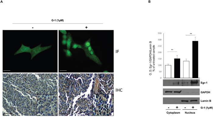 G-1 induces nuclear translocation of Egr-1 in H295R cells.