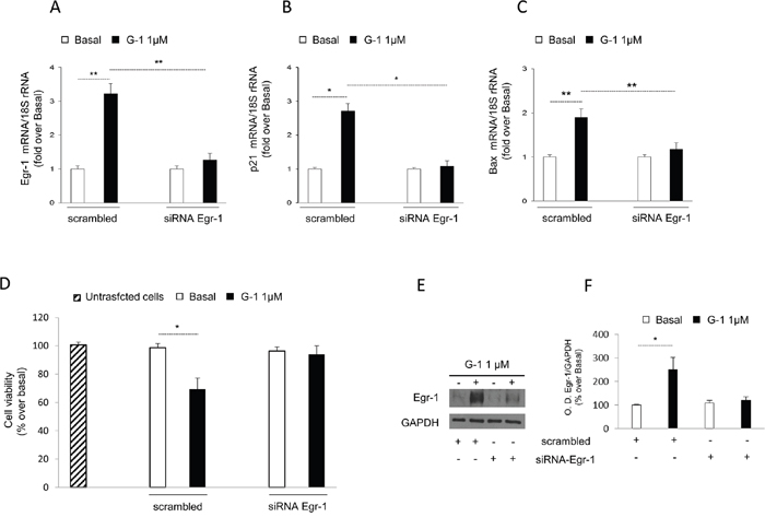 Egr-1 gene silencing reversed G-1-induced effects on H295R.