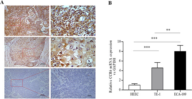 Analysis of CCR6 expression in esophageal tissues and CCR6 mRNA in esophageal cell lines.