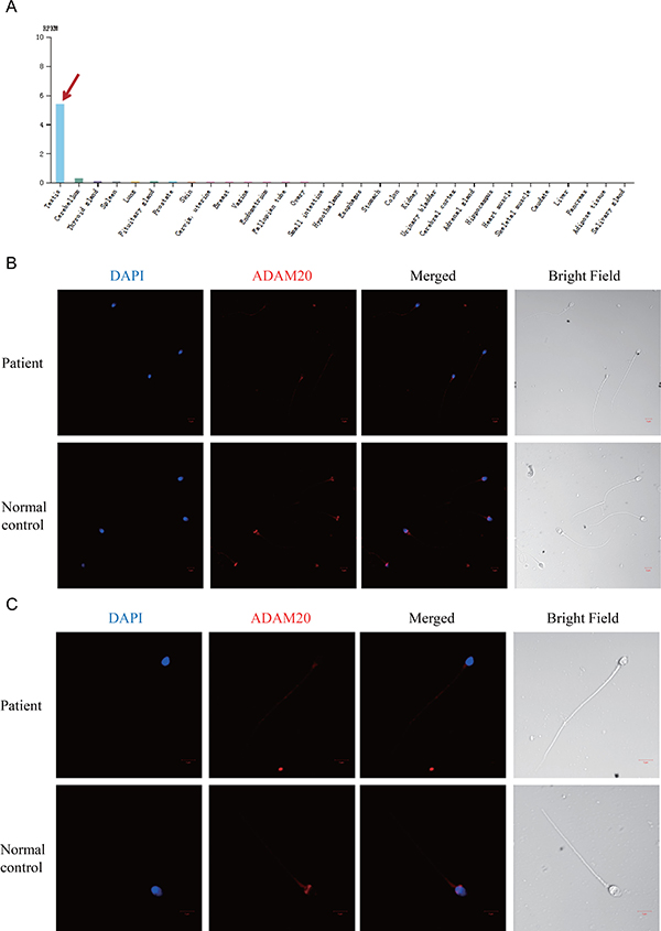 The expression pattern of ADAM20 changed in the patient's spermatozoa.