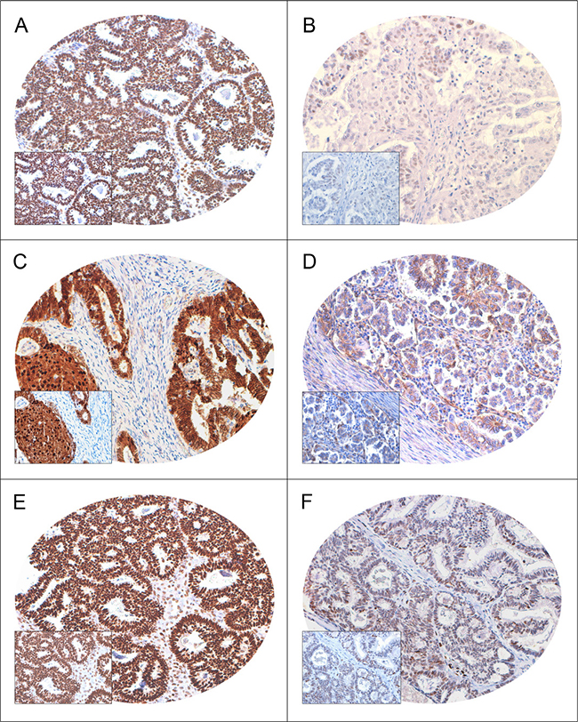 Immunohistochemical analysis of FoxM1, β-catenin and TCF4 expression in Epithelial Ovarian Cancer (EOC) TMA (n = 261).