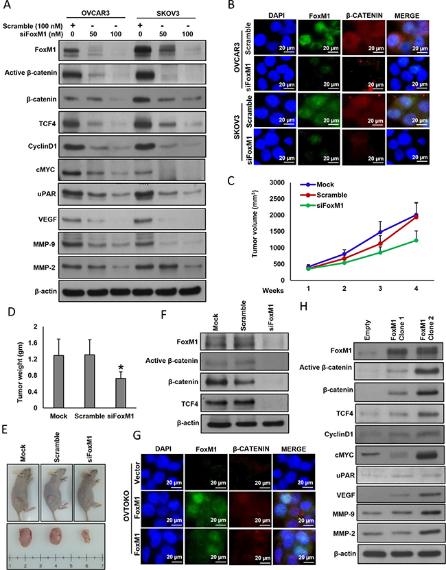 Effect of FoxM1 silencing and forced expression in EOC cell lines.