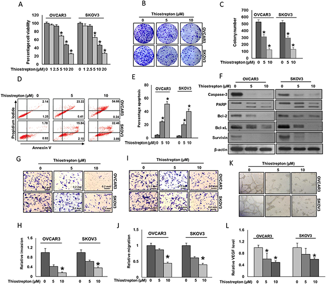 Effect of thiostrepton on cell viability, apoptosis, invasion, migration and angiogenesis.