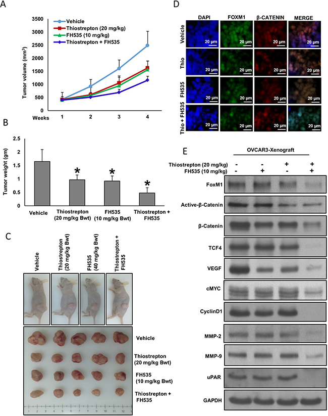 Thiostrepton and FH535 synergistically inhibits EOC tumor growth in vivo.