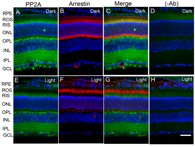 Immunofluorescence analysis of PP2A in mouse retina.