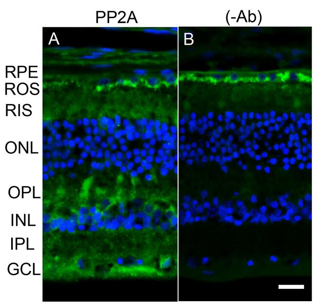 Immunofluorescence analysis of PP2A in postmortem human eye tissue.