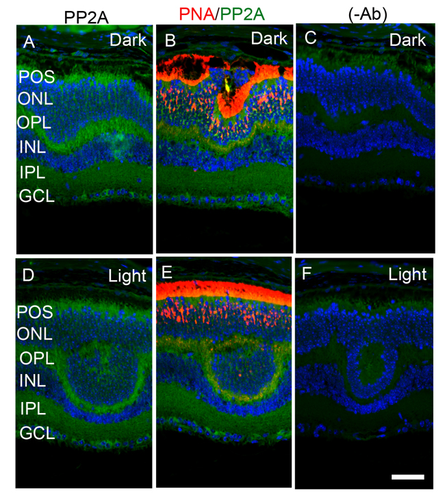 Immunofluorescence analysis of PP2A in cone-dominant
