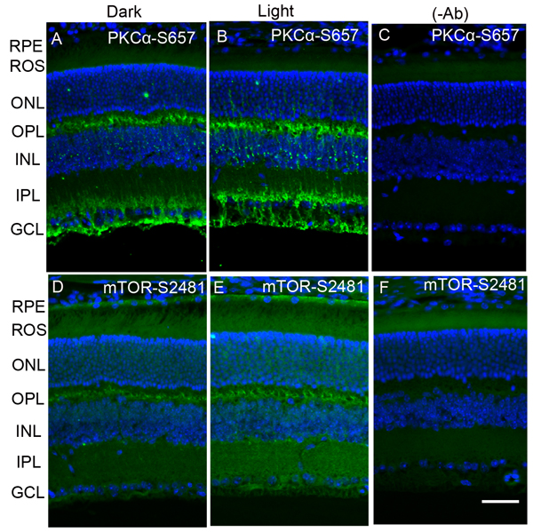 Immunofluorescence analysis of phosphorylation state of PKCα and m-TOR in dark- and light-adapted mouse retina.
