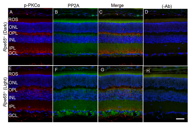 PKCα phosphorylation and PP2A expression in