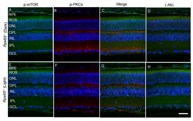 mTOR phosphorylation in