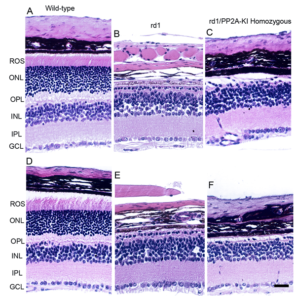 Effect of PP2A on PDE6β-mediated retinal degeneration.
