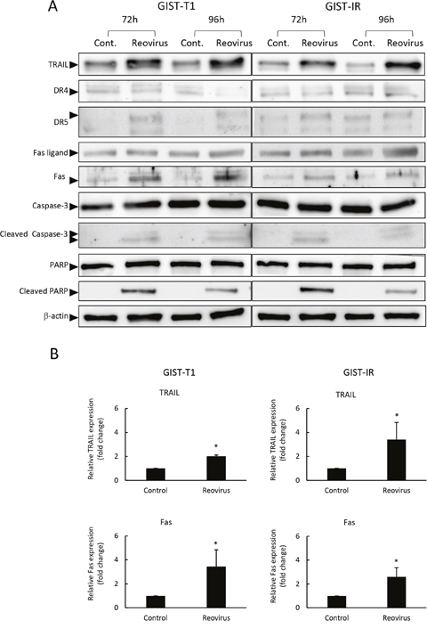 Reovirus enhanced TRAIL and Fas expression in GIST-T1 and GIST-IR cells.