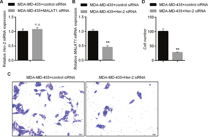 Regulating Proliferation and Invasion Abilities of HER2-positive Breast Cancer Cells by MALAT1.