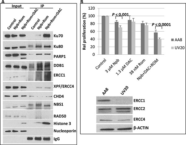 Immunoprecipitation of acetylated proteins and drug sensitivity of ERCC1-deficient cells.
