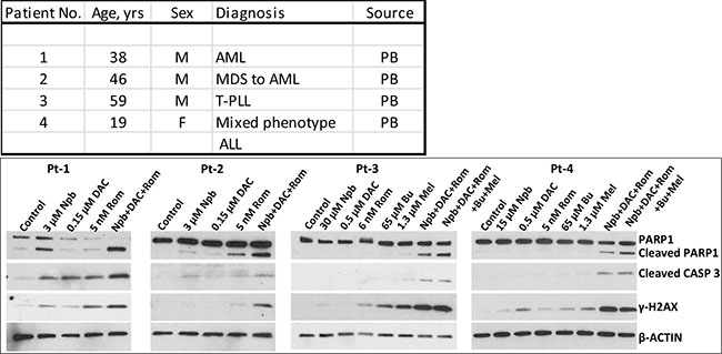 Effect of exposure of patient cell samples to drugs on biomarkers of apoptosis and DNA-damage response.