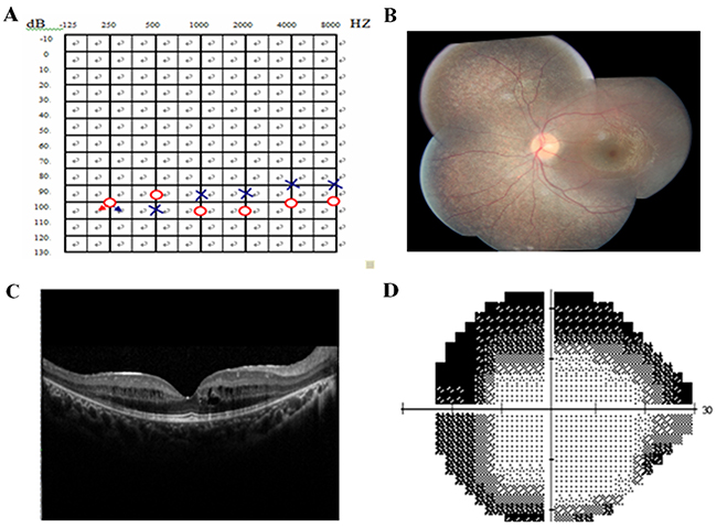Pure tone audiogram, fundus photography, optical coherence tomography (OCT), and visual field of the proband.