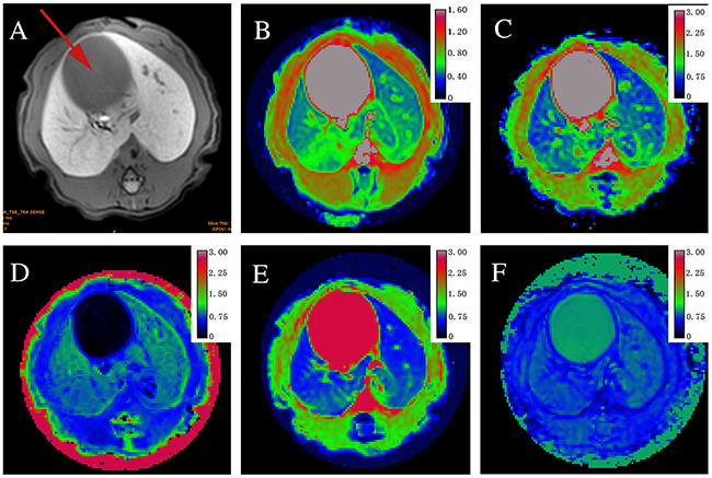 Axial MR images in sequence from a stage F2 fibrosis induced by biliary duct ligation (BDL).
