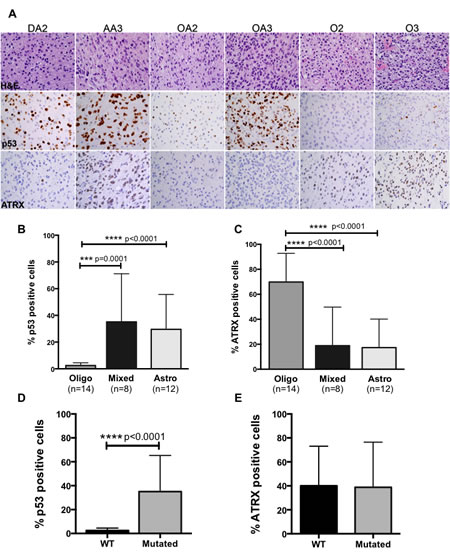 (A) Representative H&E, p53 and ATRX images from IHC analysis on tumors from each diagnostic category.