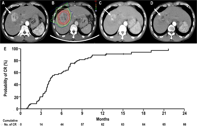 Complete response (CR) of a primary tumour to proton beam therapy (PBT).