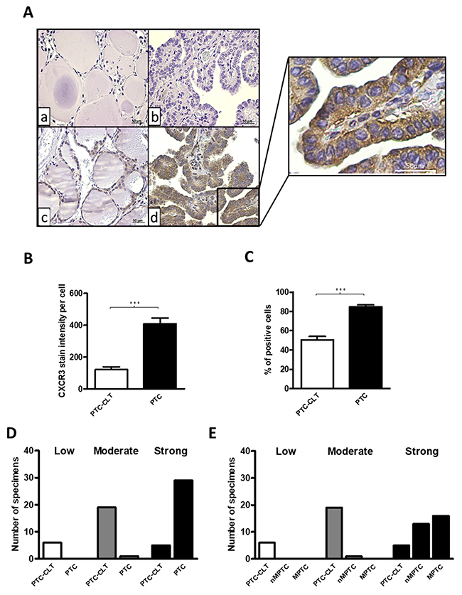 Increased CXCR3 expression in human PTC tissues.
