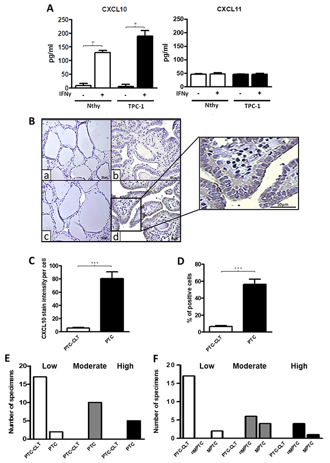 Increased CXCL10 levels in thyroid cell lines and in PTC tissues.