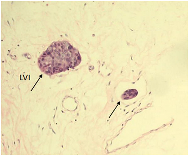 Tumor LVI (single arrows) in a section of invasive breast cancer stained with H&E at 200x magnification.