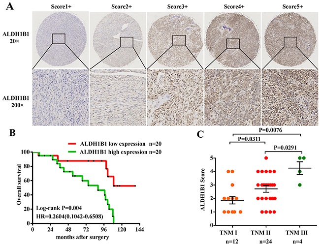 Association of ALDH1B1 expression and clinical significance in our OS patients.