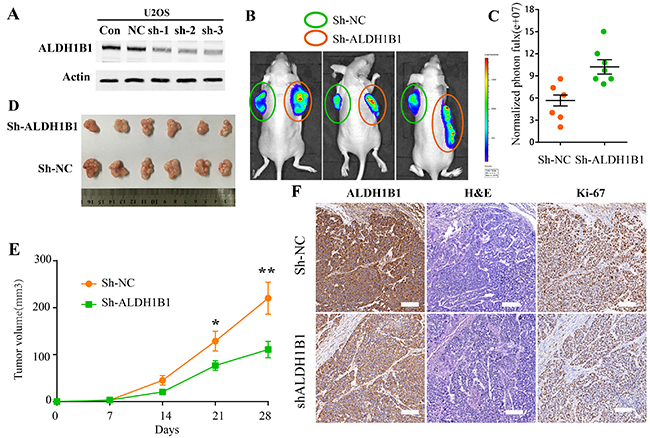 The roles of ALDH1B1 in OS in vivo.