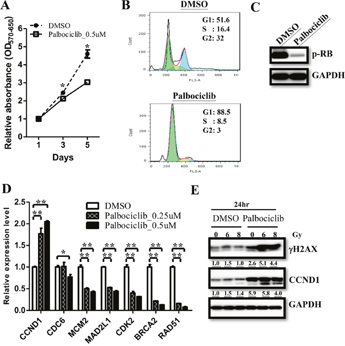 Palbociclib treatment regulate cell proliferation in ependymomas.