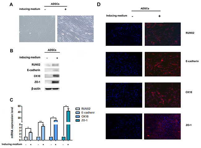 Expression of RUNX2 and E-cadherin during epithelial differentiation.