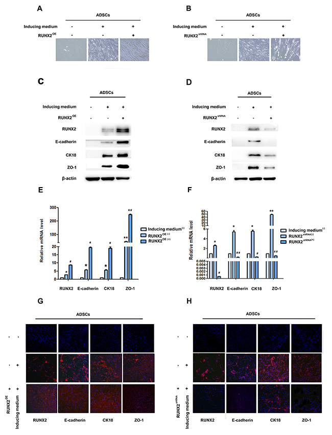 RUNX2 positively regulates E-cadherin expression and epithelial differentiation.
