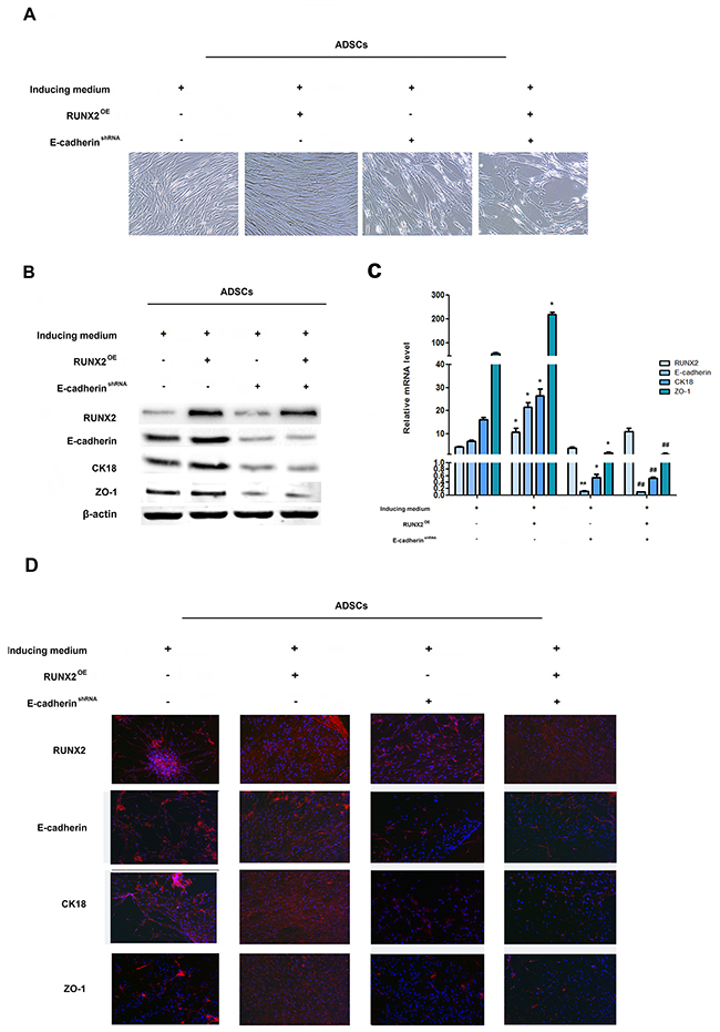 RUNX2 promotes ADSCs differentiation through E-cadherin.