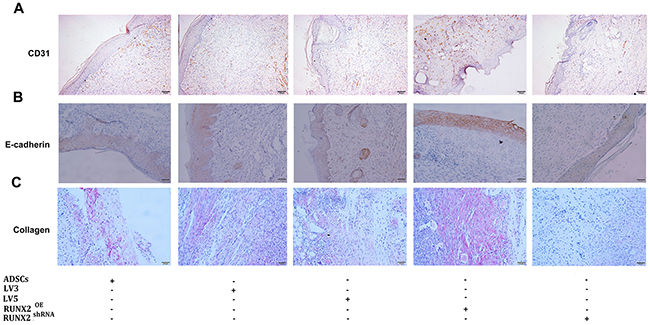 RUNX2 improves neovascularization and re-epithelialization of burn skin of mice.
