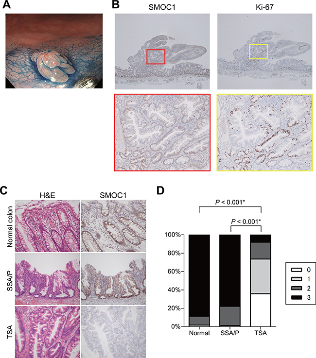 Immunohistochemical analysis of SMOC1 in serrated lesions.