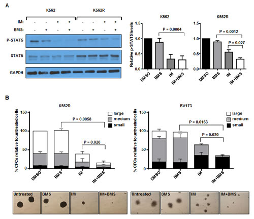 Combination treatment with BMS-911543 and imatinib (IM) is more effective at reducing pSTAT5 levels and inhibiting proliferative capacity of IM-resistant K562 and BV173 cells.