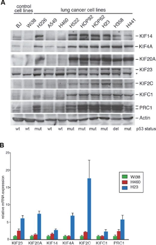 Mitotic kinesins and the microtubule-associated protein PRC1 are overexpressed in human lung cancer cell lines.