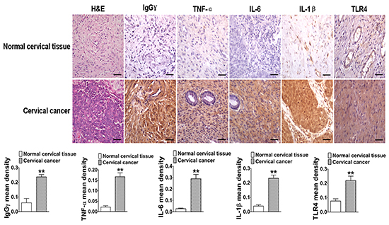 The close relationship between IgG, TLR4, and proinflammatory cytokines in human cervical cancer.