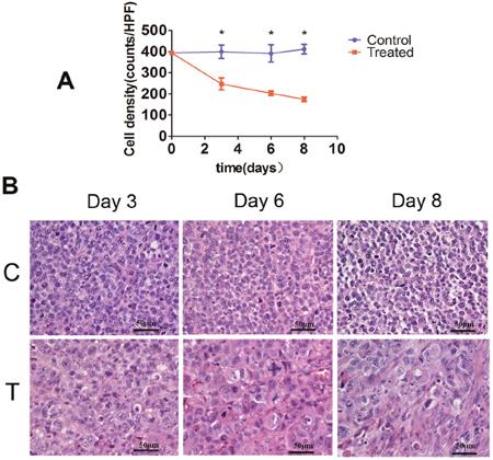 Histopathological analysis of tumor cell density.