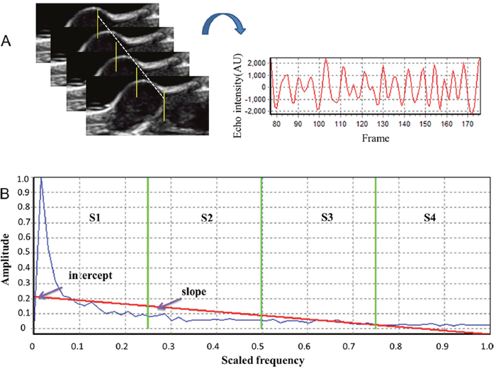 Analysis of ultrasonic RF time series features.