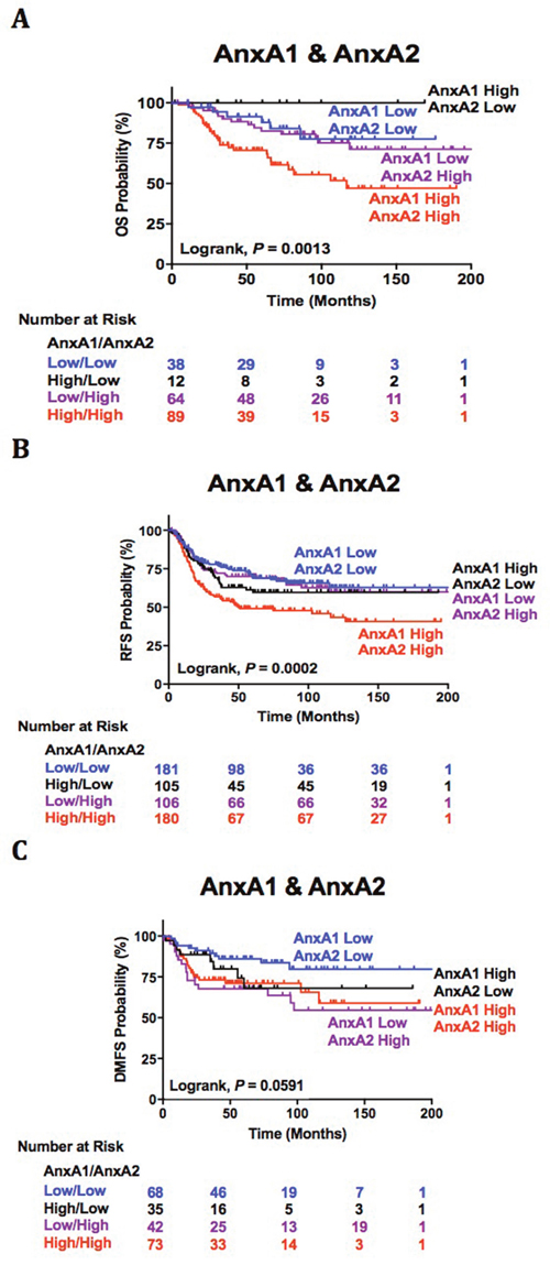 AnxA1 and AnxA2 dual association with clinical outcomes.