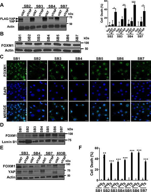 YAP siRNA-directed knockdown or FOXM1 pharmacologic inhibition induces murine CCA cell death.