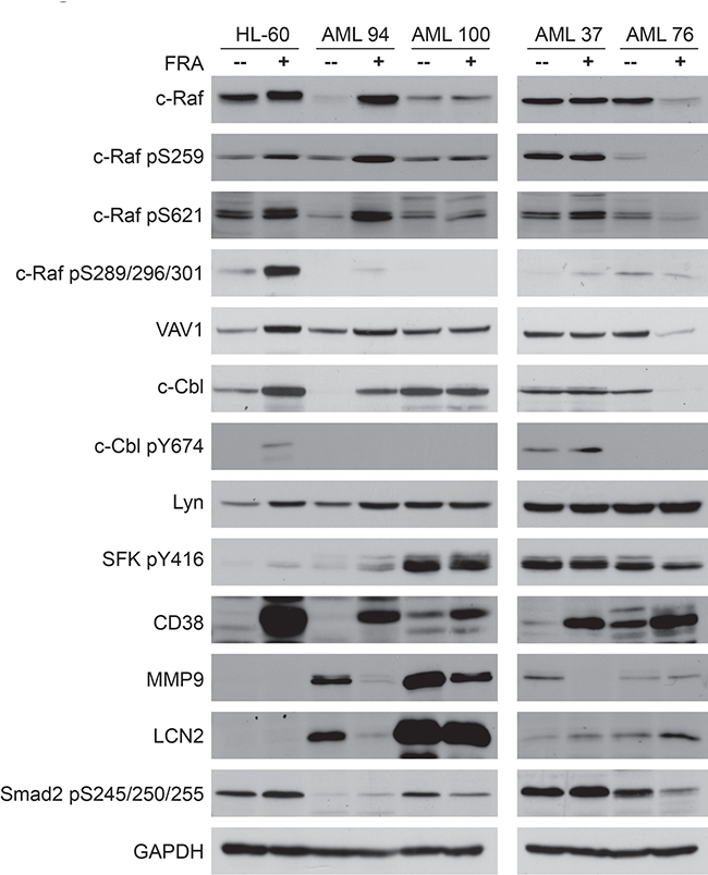 Western blot analysis of 25 μg protein total cell lysate of untreated vs. FRA treated for 72 h samples of HL-60, AML 94, AML 100, AML 37 and AML 76. HL-60 and AML 94 treated with FRA upregulate the expression and activation of most of the signalsome proteins.